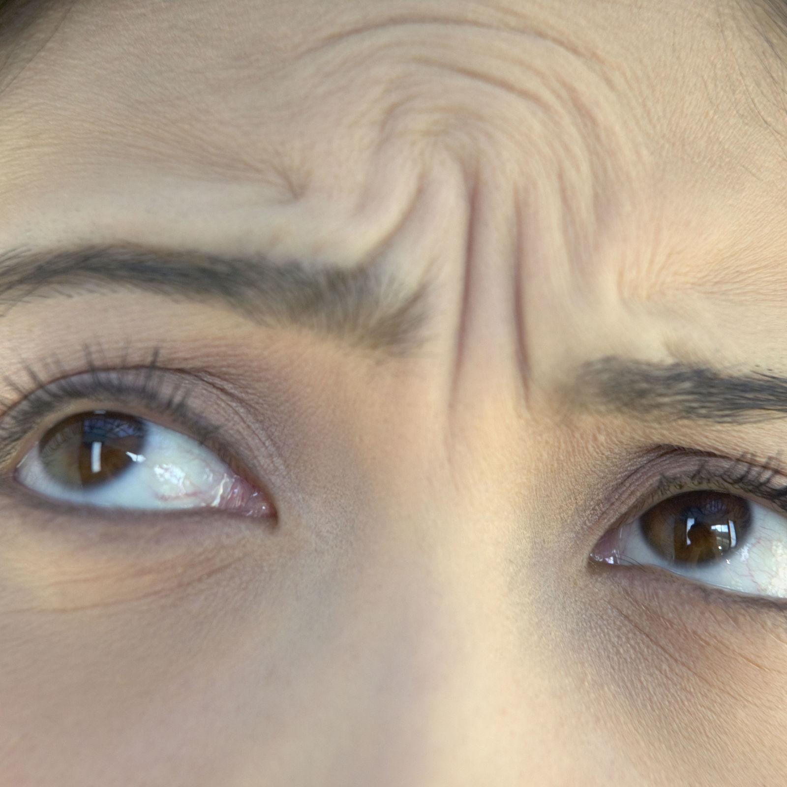 how to get rid of wrinkles between eyebrows