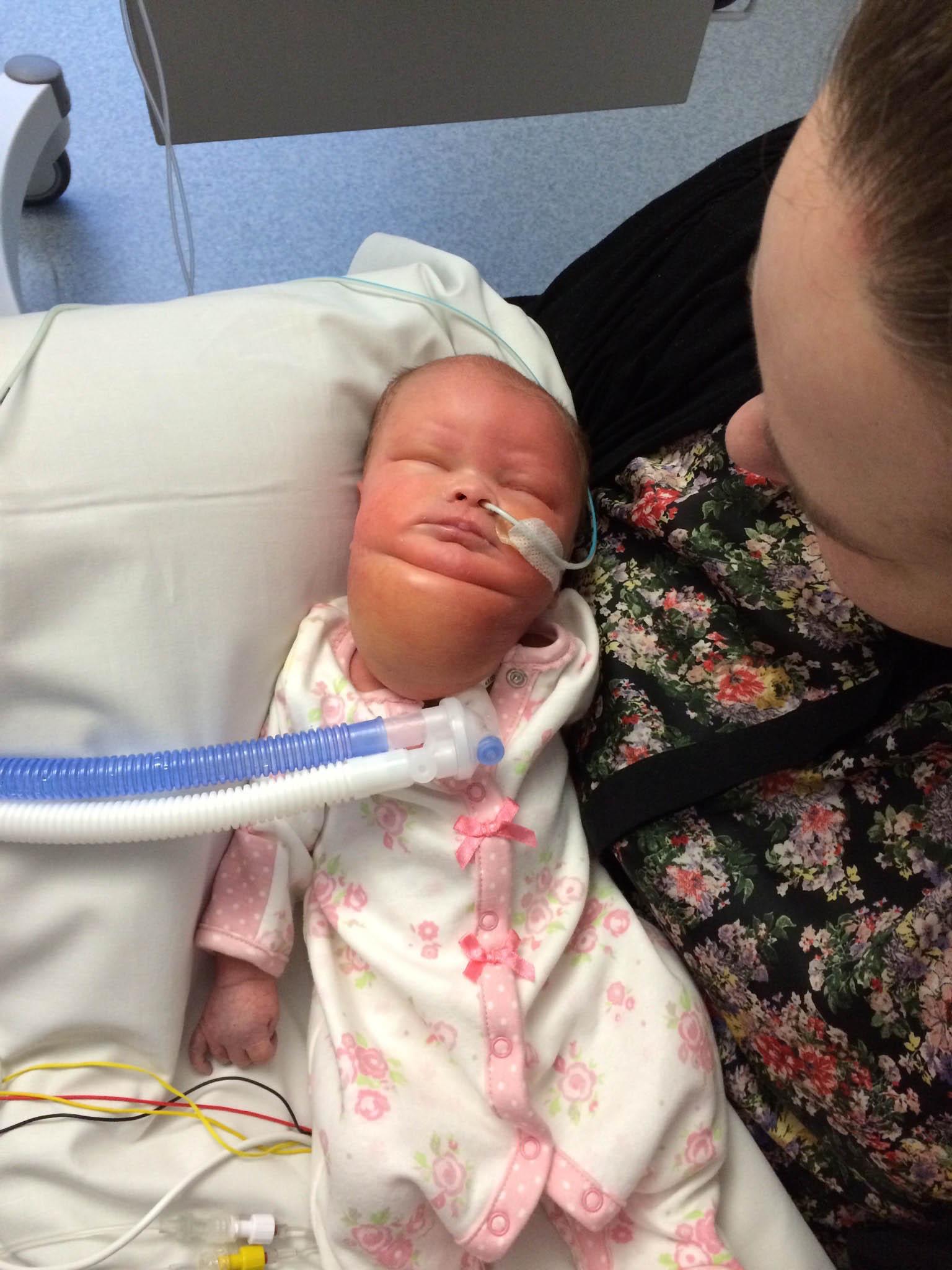 Baby Who Was Born With a Massive Neck Tumor Celebrates ...