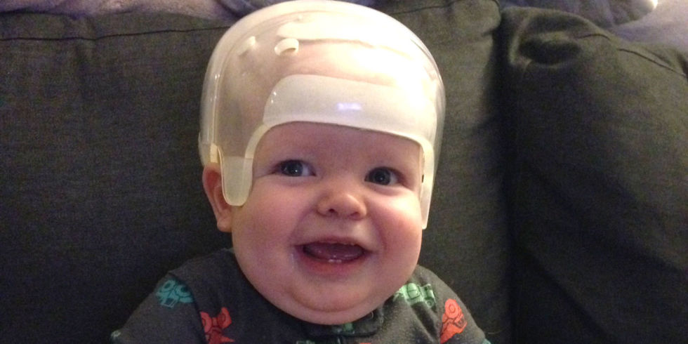 this adorable baby born without a soft spot is now recovering, Sphenoid